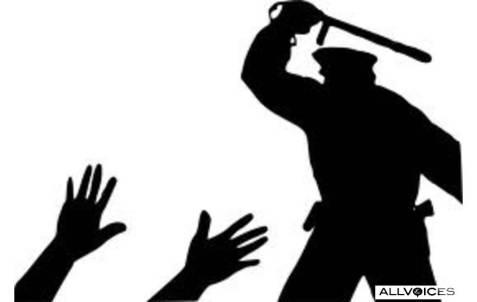 police-brutality.jpg%3Fw%3D477%26h%3D302?w=477
